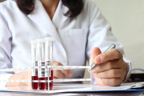αιμα προς εξεταση - τα σημάδια του καρκίνου του εντέρου