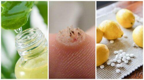 Απαλλαγείτε από τα θηλώματα με 6 ισχυρές συνταγές
