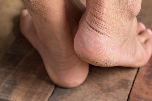 πόδια, πτέρνα - θεραπεύσετε την άκανθα πτέρνας