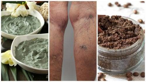 Απαλλαγείτε από τους κιρσούς με φυσικές σπιτικές συνταγές