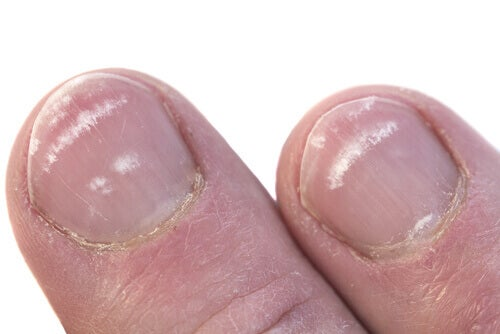νύχια, λευκά, σημάδια στα νύχια