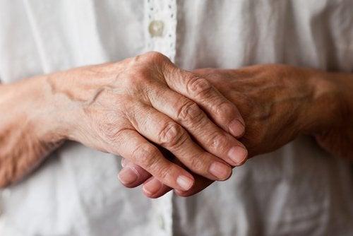 αρθρίτιδα στα χέρια - την ρευματοειδή αρθρίτιδα