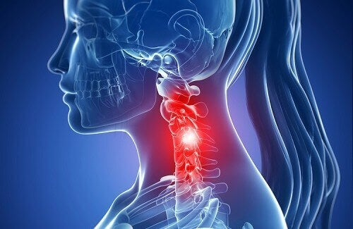 Τα συμπτώματα της αυχενικής σπονδύλωσης και θεραπείες