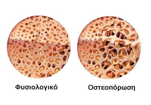 Αντιμετώπιση της νόσου του Crohn, γλυκοκορτικοειδή