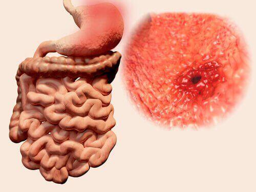 παχύ έντερο και έλκος στο στομάχι- τα εντερικά αέρια