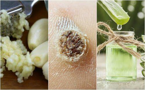 Έχετε κρεατοελιές; Καταπολεμήστε τις κρεατοελιές φυσικά με αυτές τις 5 θεραπείες