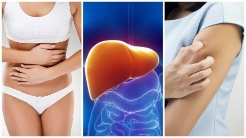 8 συμπτώματα όταν το ήπαρ είναι υπερφορτωμένο με τοξίνες