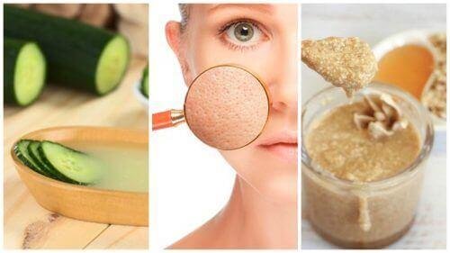 Μικρύνετε τους πόρους σας με αυτές τις 5 φυσικές θεραπείες