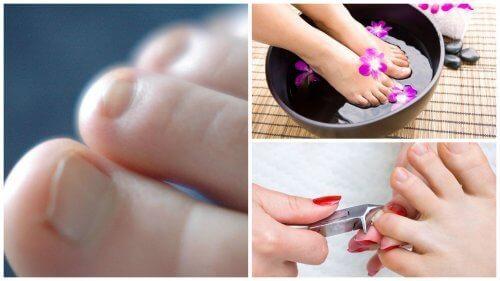 νύχια ποδιού, νυχοκόπτης σε νύχια ποδιού, ονυχομυκητίαση στα πόδια