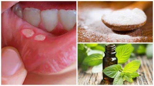 7 σπιτικές θεραπείες για να επουλώσετε ταχύτερα τα στοματικά έλκη