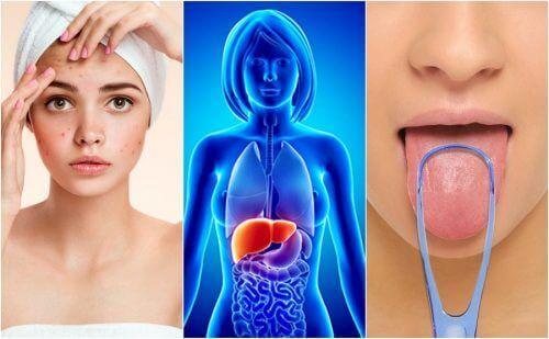 7 προειδοποιητικά σημάδια πως το συκώτι σας έχει κατακλυστεί από τοξίνες
