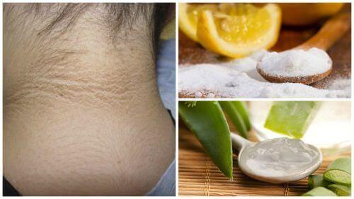 5 τρόποι για να λευκάνετε τα σκούρα σημάδια στο λαιμό σας