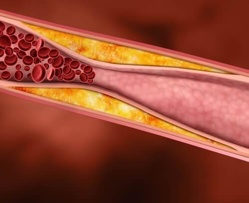 αρτηρια κλειστη -σημάδια αναγνώρισης του υποθυρεοειδισμού