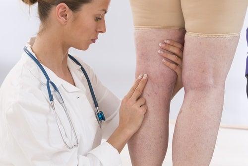 Συμπτώματα που δε θα πρέπει να αγνοούν οι γυναίκες, φλεγμονή άκρων