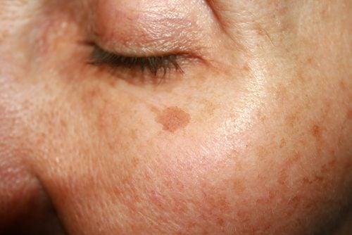 Αποτρέψετε τα σημάδια γήρανσης με τέσσερις σπιτικές θεραπείες, κηλίδες