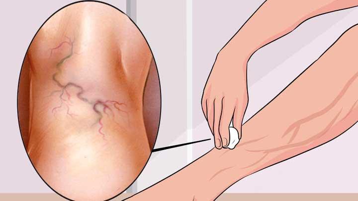 κιρσοί, φλεβίτιδα, θεραπεία- θεραπεύστε τους κιρσούς