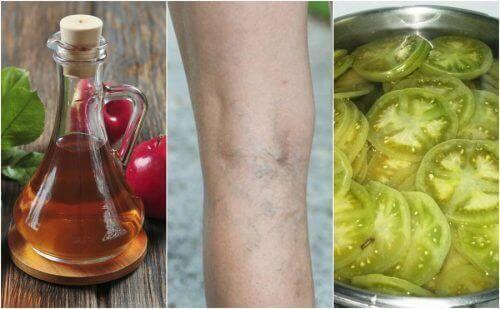 Καταπολέμηση των κιρσών με μηλόξυδο και πράσινες τομάτες