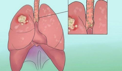8 σημάδια του καρκίνου του πνεύμονα που πρέπει να ξέρετε