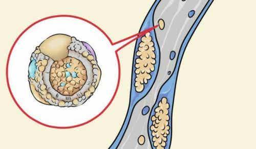 8 διατροφικές στρατηγικές για μείωση της χοληστερίνης