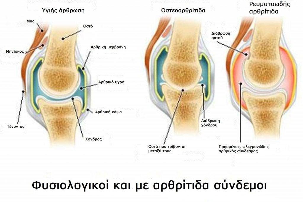 Διαφορές ανάμεσα στην αρθρίτιδα και την οστεοαρθρίτιδα