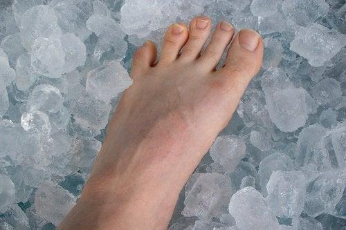 πόδι σε πάγο Ανακούφιση από την τενοντίτιδα