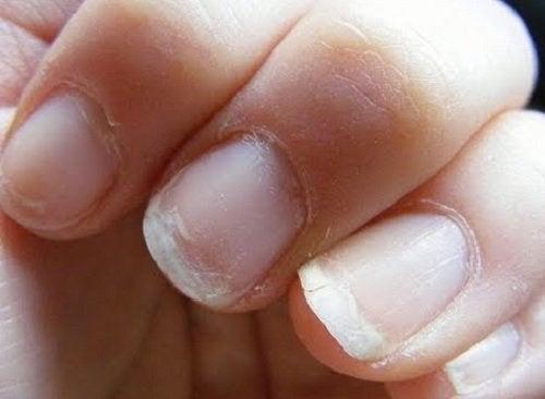 Φτωχή κυκλοφορία του αίματος - Εύθραυστα νύχια