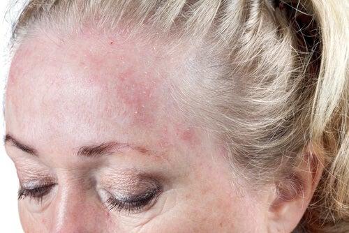 Υγρά μαλλιά, δερματικές μολύνσεις
