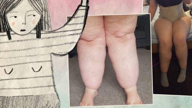 πόδια με λιποίδημα - το λιποίδημα