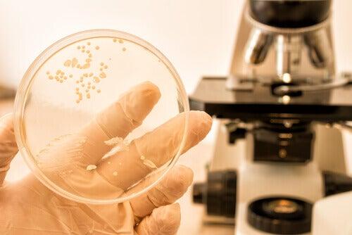 μικρόβιο σε γυάλινο δοχείο - Τι είναι η καντιντίαση;