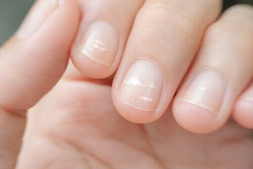 Γραμμές στα νύχια - Λευκά σημάδια στα νύχια του χεριού
