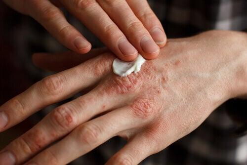 Γραμμές στα νύχια - Εφαρμογή αλοιφής για την ψωρίαση στο χέρι