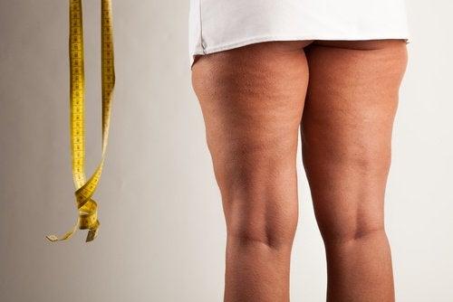 πόδια με κυτταρίτιδα - το λιποίδημα