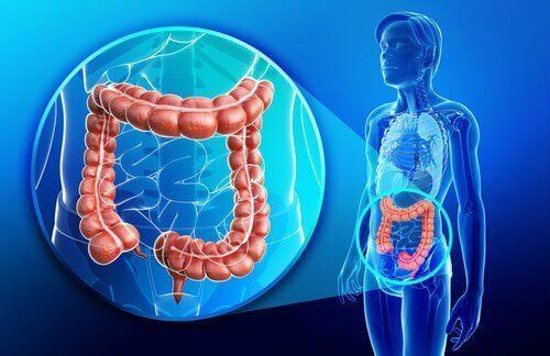 Τι είναι η νόσος του Crohn;