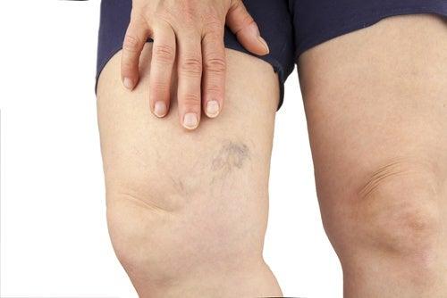 γυναικεία πόδια με κιρσούς