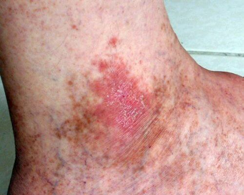 Συμπτώματα καρκίνου του δέρματος - Πληγή στο χέρι