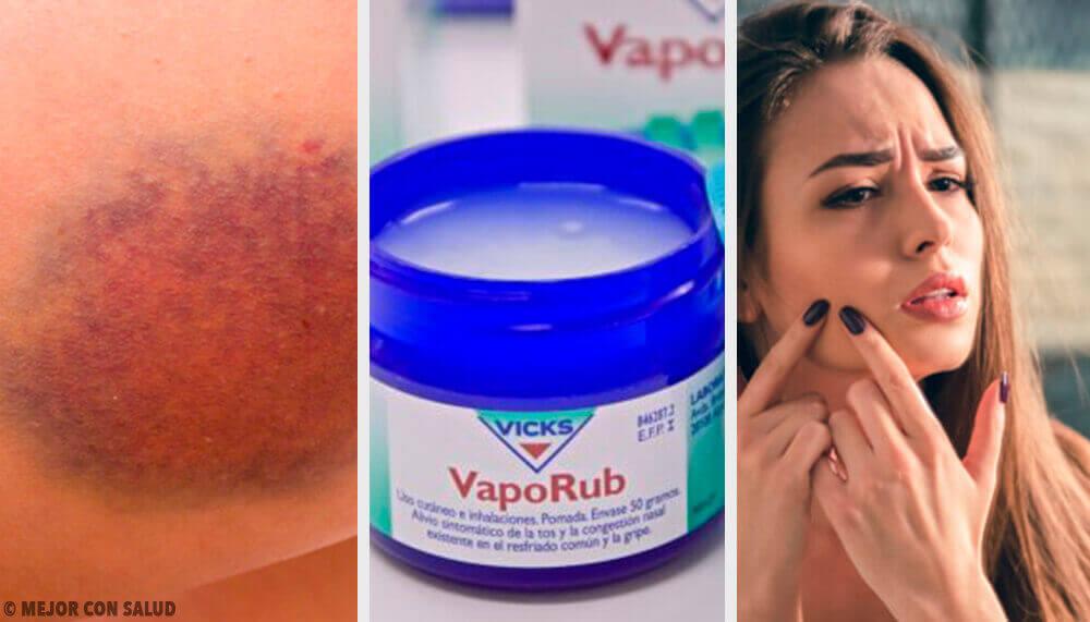 11 εκπληκτικές χρήσεις για το διάσημο Vicks VapoRub