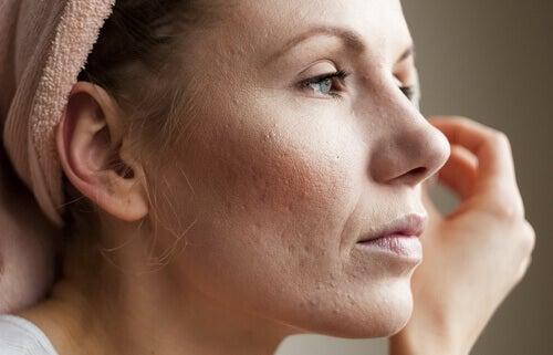 γυναίκα, σημάδια υψηλών επιπέδων κορτιζόλης
