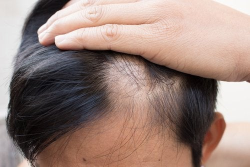 6 φυσικές θεραπείες για την αλωπεκία.