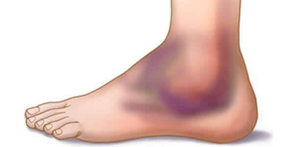 Τραυματισμοί στον αστράγαλο: πρόληψη και αντιμετώπιση