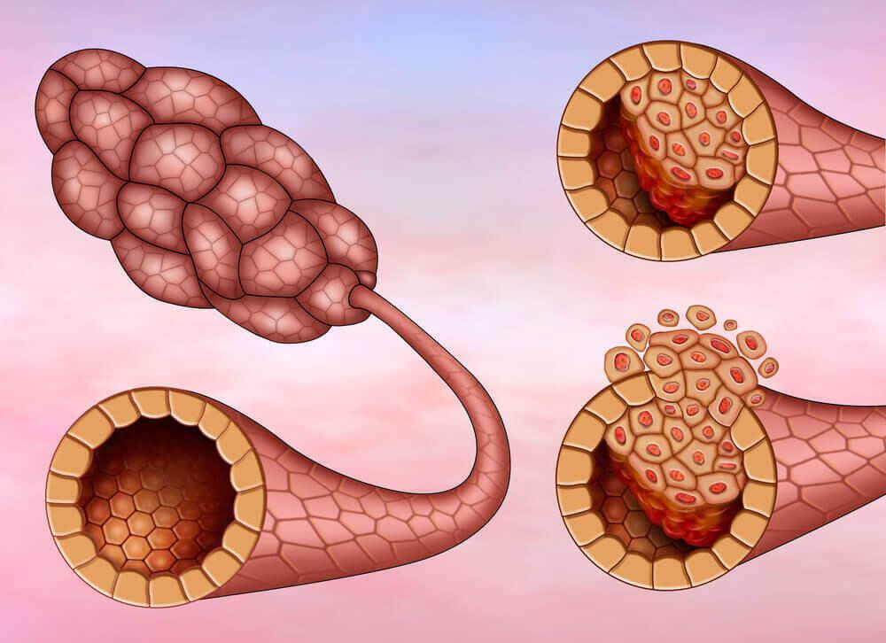 ο καρκίνος του μαστού στους γαλακτοφόρους πόρους