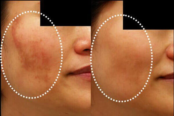 Μειώστε τον αποχρωματισμό του δέρματος με 5 μάσκες