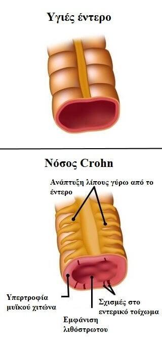 έντερο με νόσος του Crohn