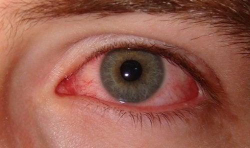 Πώς να καταπολεμήσετε την ξηροφθαλμία - Κόκκινο μάτι