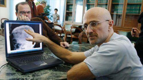 Η πρώτη μεταμόσχευση κεφαλιού στον κόσμο, θα πραγματοποιηθεί σε λιγότερο από 10 μήνες, Sergio Canavero