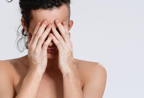 Τι είναι η λεύκη; Μάθετε τα πάντα για τα συμπτώματα και τις θεραπείες, συμπτώματα
