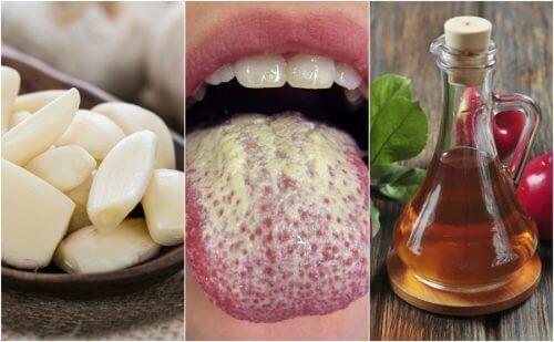 Αναχαιτίστε την ανάπτυξη του μύκητα Candida με φυσικές θεραπείες