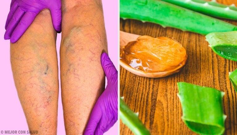 adamovo tratament apple varicoză