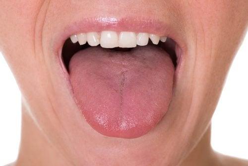 Τα πρώτα 5 συμπτώματα του καρκίνου της γλώσσας