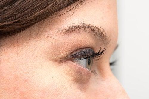 Τέλειο δέρμα - Γυναίκα με σακούλες κάτω από τα μάτια