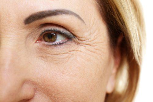 Πόδι της χήνας στα μάτια: Που οφείλεται και πως να το αποτρέψετε